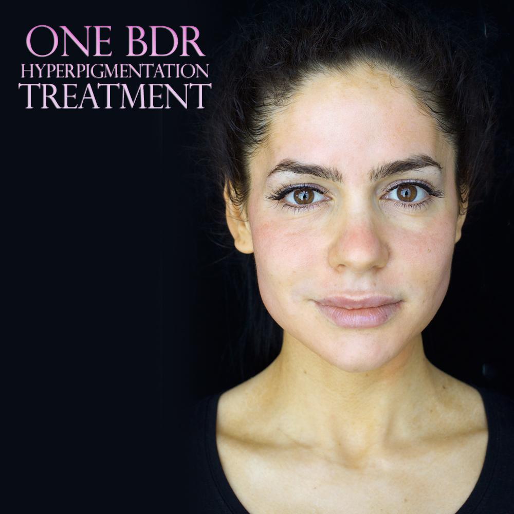 one-bdr