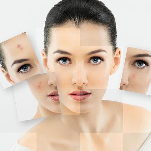 skin-analysis1