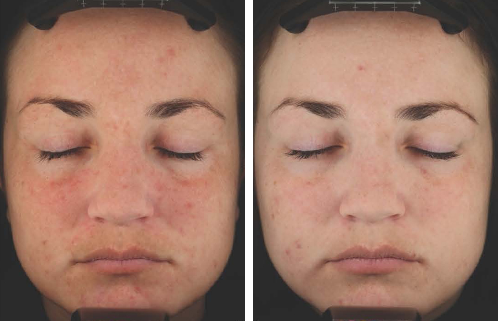 acne-clinical-result