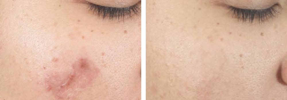 acne-scarring-clinical-results