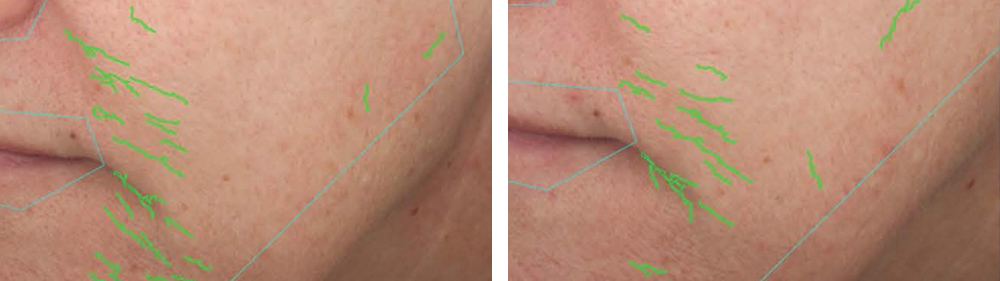 aging-skin-clinical-results-nasolabial-folds