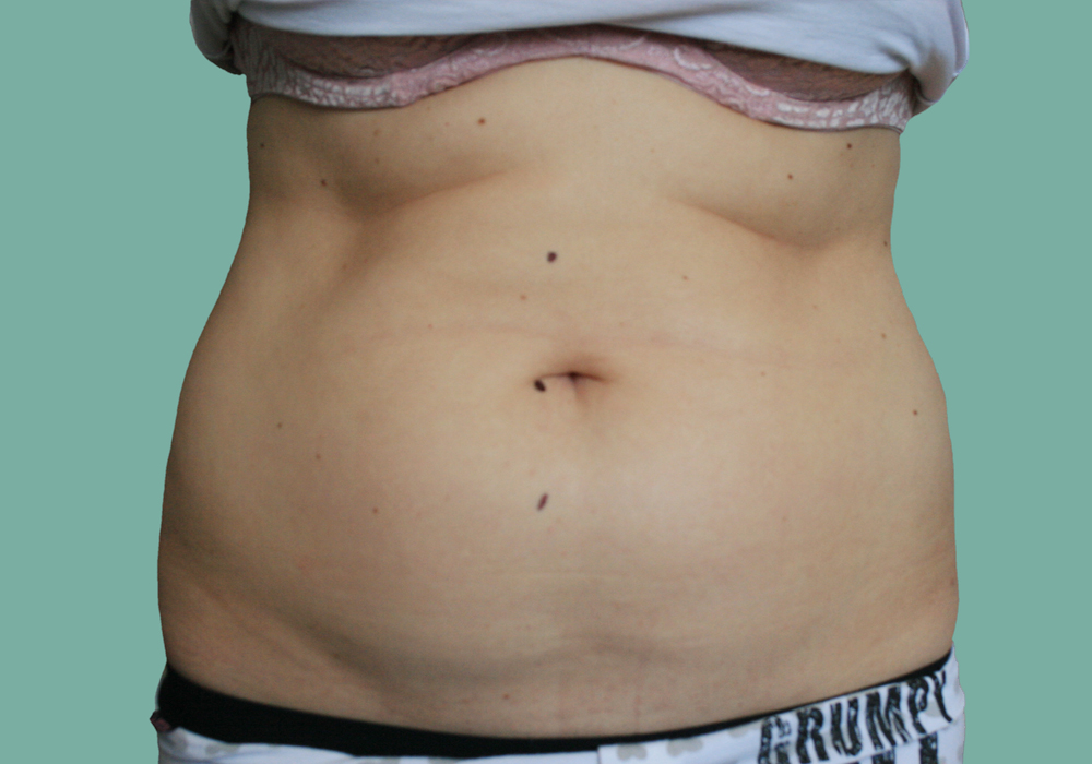 before-slimming-treatment-image-1a