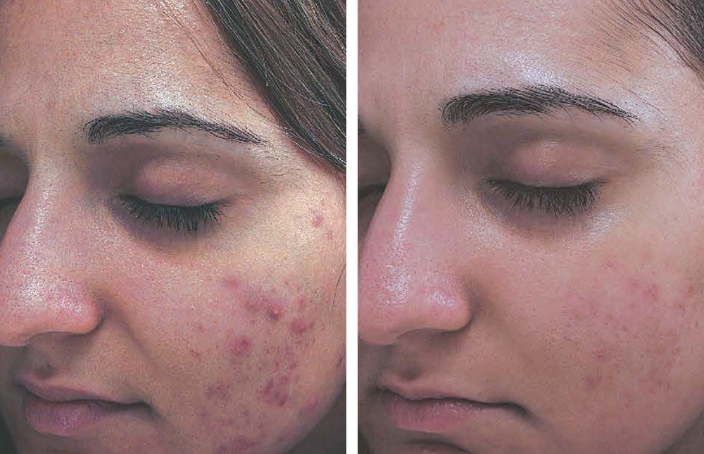 clinical-result-acne-inflammation