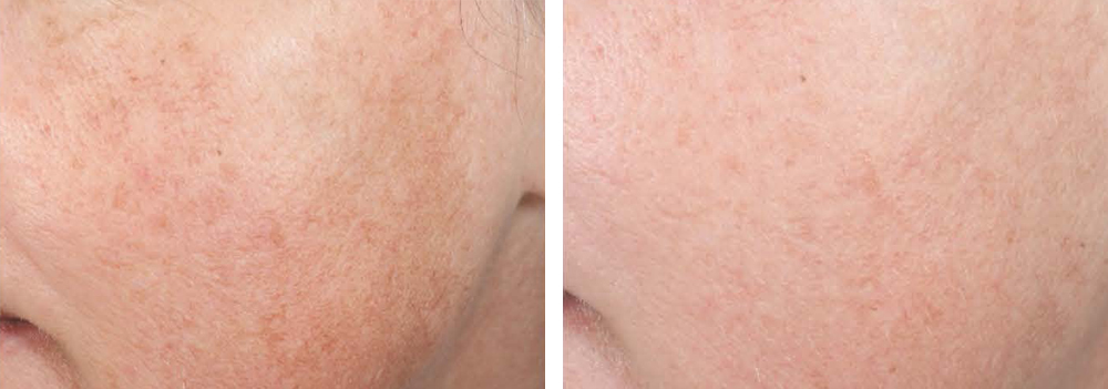 pigmentation-clinical-study