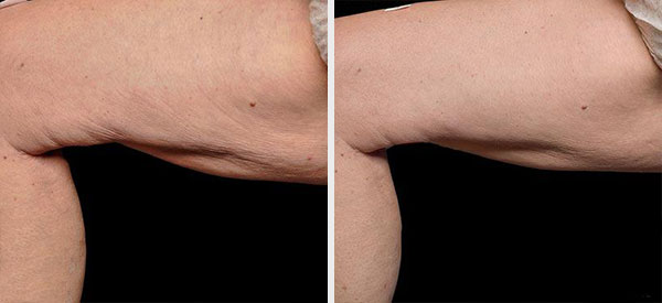 tripolar-eadiofrequency-before-after1