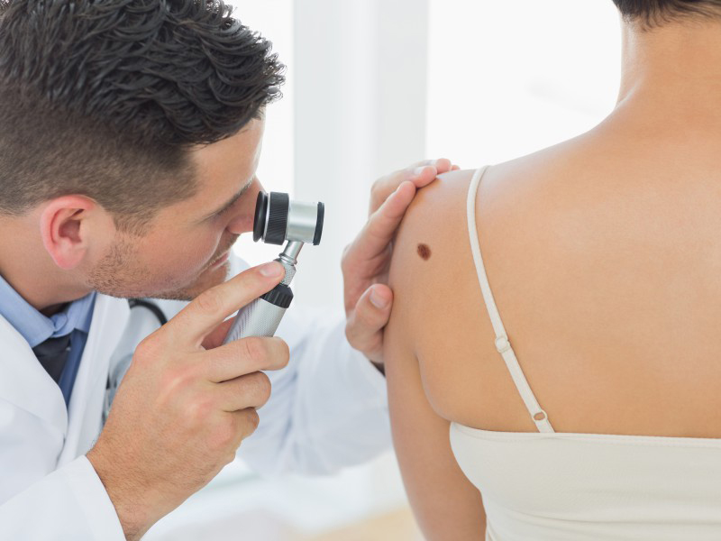 mole-removal-revolution-beauty-clinic-1